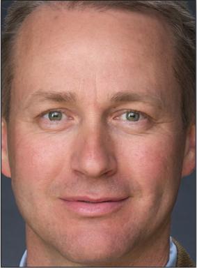Per Danielsson, MD
