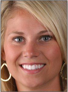Stephanie Johnson, MSSW