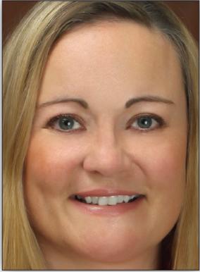 Mary Frances Barthel, MD, MHCM